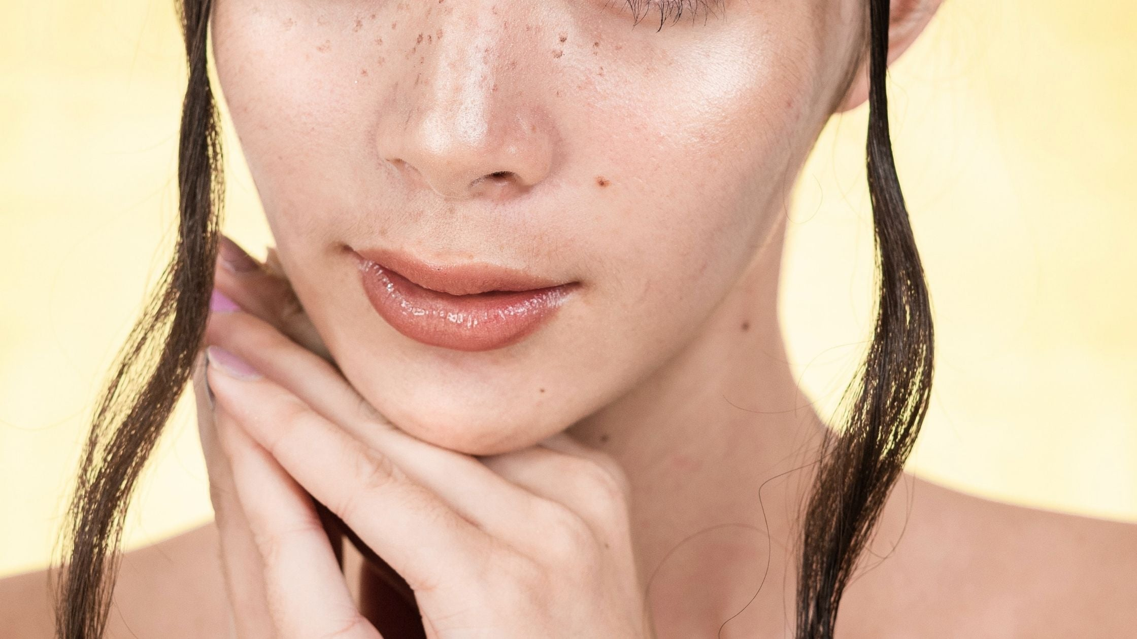Dark spots on your face