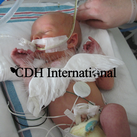 Donate to CDH Research