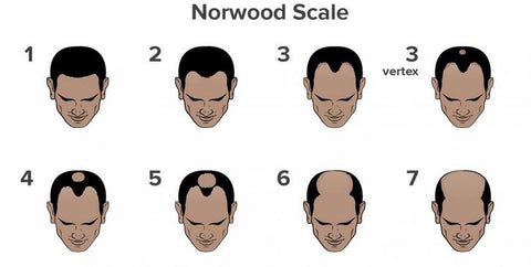 Norwood Scale helps to know what hair loss concealer you need