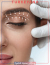 Eyelid Upper Lifting - Turkeyana Clinic Shop