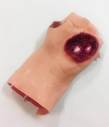 Gunshot Wound Palm