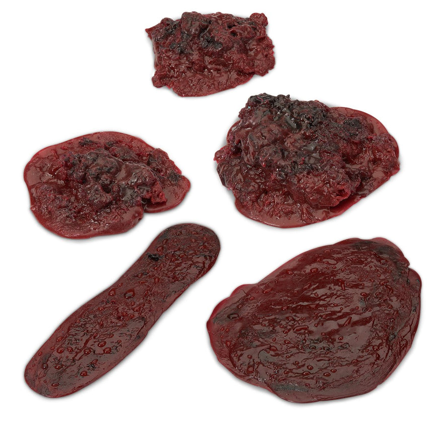 Life/form® Clots and Hemorrhages - Set of 5