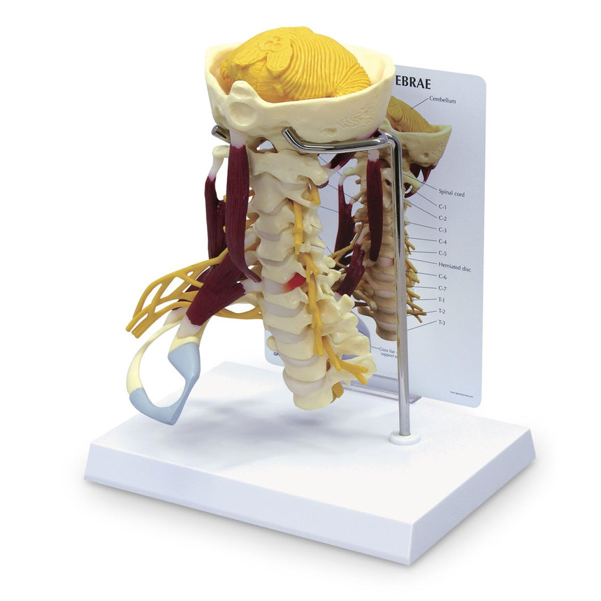Life-Size Cervical Model with Muscles and Nerves
