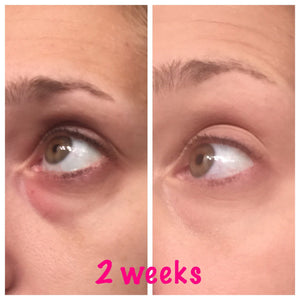 Before and After Eye Renewal