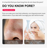 Vacuum Pore Cleaner Nose T Zone Blackhead Remover