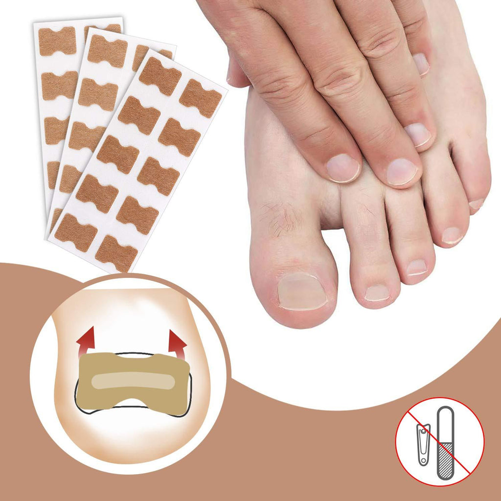 Fast Healing Toenail Patch (Set of 50Pcs)
