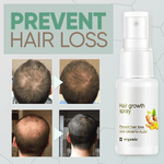 GingerGrowth Hair Regrow Spray