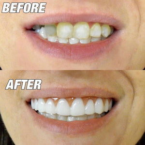 Perfect Smile Veneer (Upper & Lower)