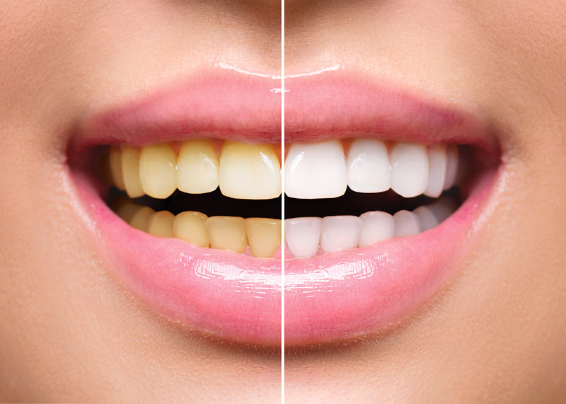 Best Crest Teeth Whitening Strips UK