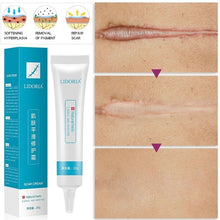Load image into Gallery viewer, 1PC 20g Scar Stretch Marks Remover Cream Skin Repair Face Cream Acne Spots Acne Treatment Whitening Cream Skin Care