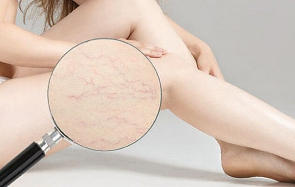 Stretch marks: Causes of formation and treatment