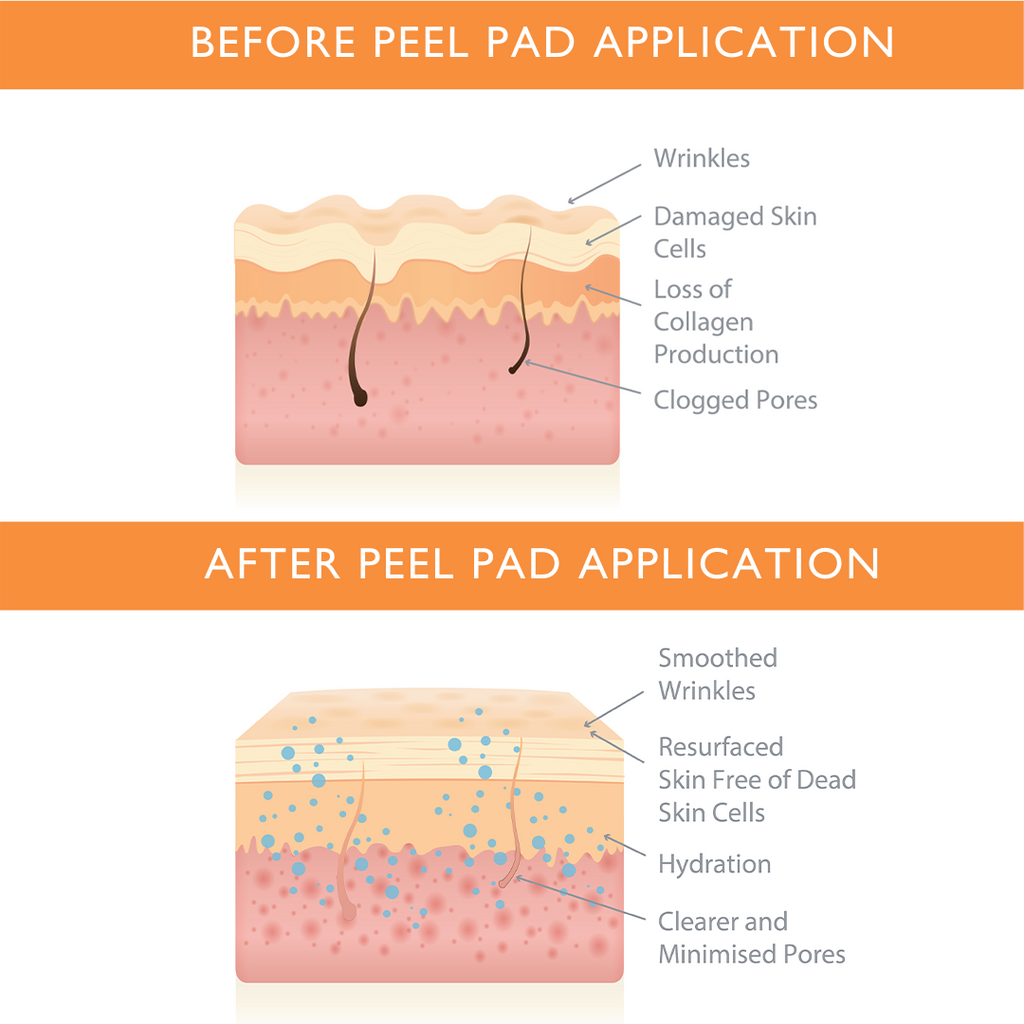 Face Exfoliating Peel Pads Before and After Skin Animation