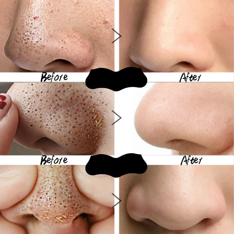 60pcs!! 15/30pcs Nose Deep Cleansing Peel-off Nasal Sticker Blackhead Remover Mask Pore Cleaner Whitening Acne Treatment Strips Bamboo Black Head Remover Tool Skin Care Face Care