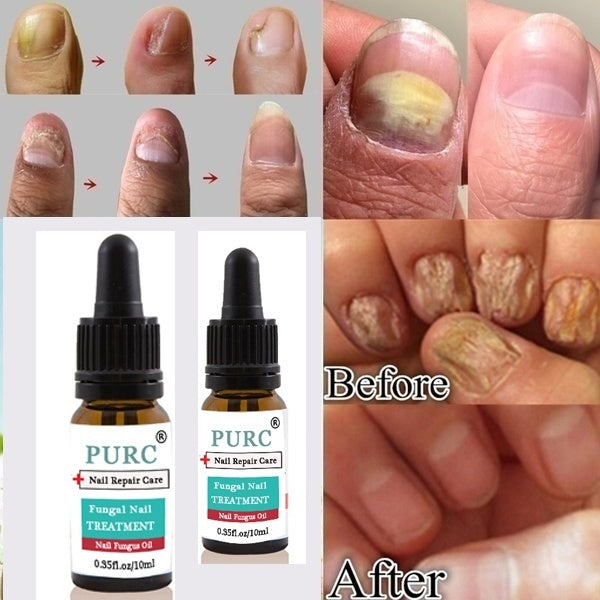 New Grass Effective Fungus Stop, Fungal Treatment, Anti-fungal Nail Treatment, Effective Against Nail Fungus, Anti-fungal Nails, Toenail and Nail Solution, Remove Yellow Fominfected Fingers and Toenails(size:5ml/10ml/15ml)
