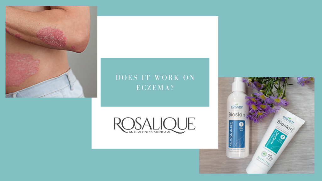 Does Rosalique work when I have eczema?