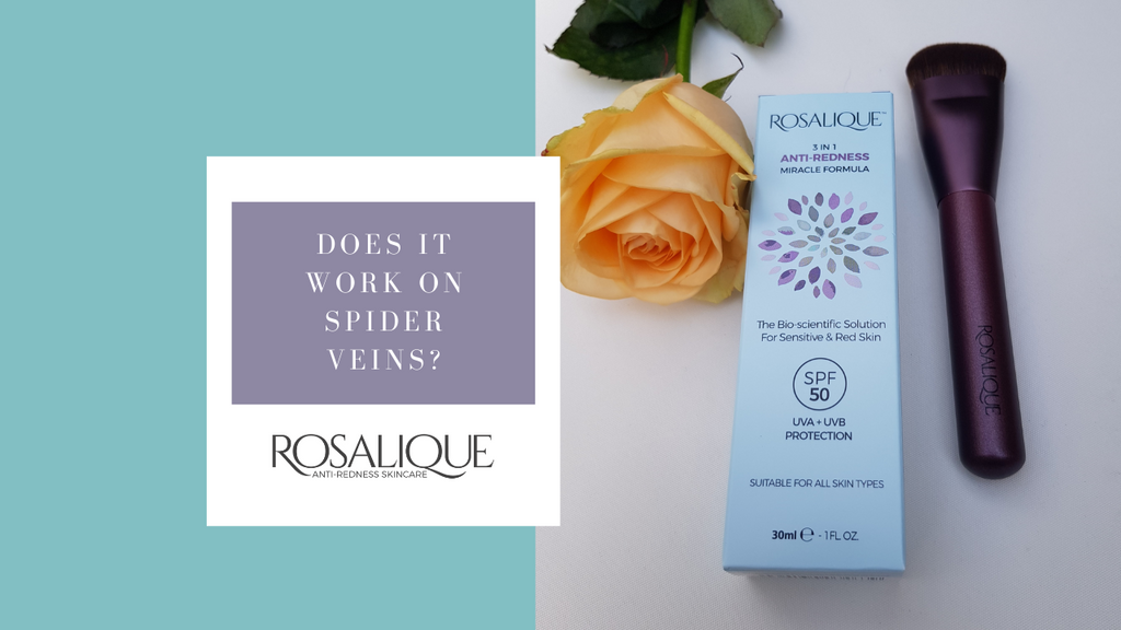 Does Rosalique work on spider veins?