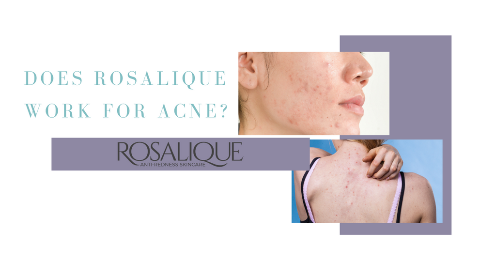 Does Rosalique work for Acne?