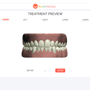 3D Treatment Preview Of Straight Teeth - Dental Aligners | NewSmile Club