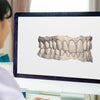 NewSmile Treatment Preview - Clear Aligners For Confidence