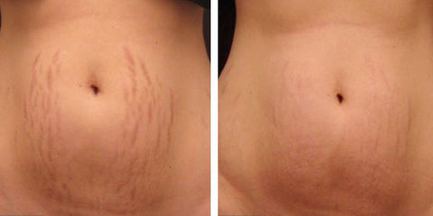 Stretch Marks Before & After Using Derma roller