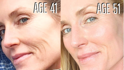 Before & After using Derma roller