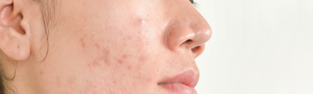 How to fix your Acne problems?