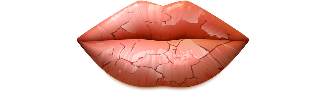 Dry lips during winter