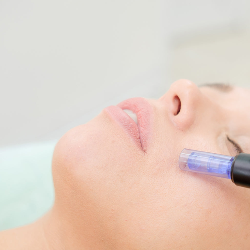 Microneedling Treatment Milecross Clinic