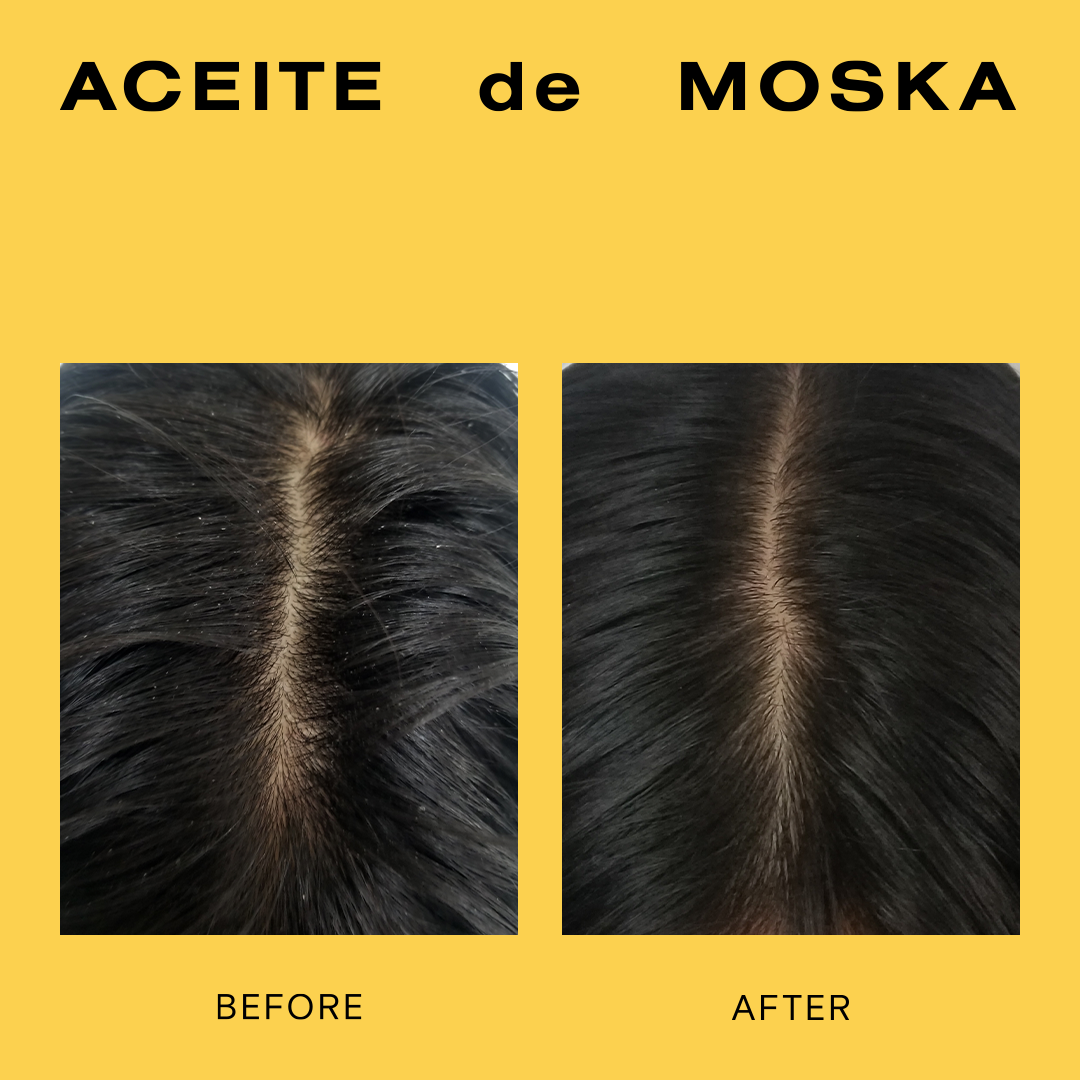 Before and after Aceite de Moska