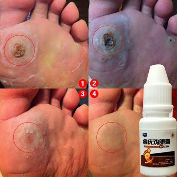 10ml Body Warts Treatment Cream Foot Care Cream Skin Tag Remover Foot Corn Removal Plantar Genital Warts Ointment