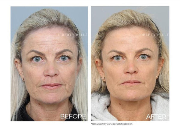 Mother of the bride - Non surgical Secrets blog post by Liberty Belle Rx - Woman before and after treatment with blonde hair and blue eyes