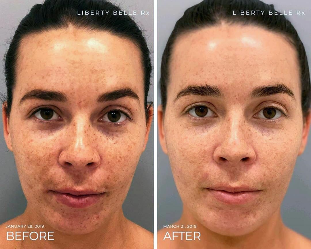 Lisa's Liberty Belle Skin Transformation