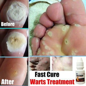 1PC 10ml Foot Care Relief Pain Removal Warts Plaster Chicken Eye Corns Removal Plantar Warts