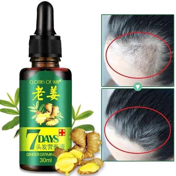 10/20/30 ML Factory direct sales Hair Growth Essence Natural Beauty Hair Growth Fluid Hair Growth Essence Oil