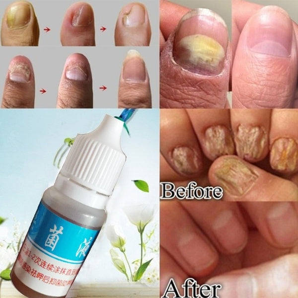 10ML Nail Repair Treatment Liquid Cleanser Onychomycosis Removal Treatment Oil