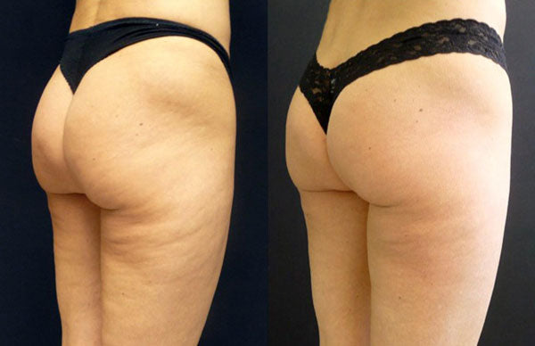 What Causes Sudden Cellulite