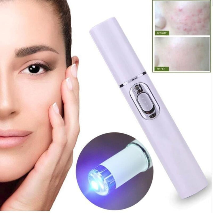 Blue Light Anti Acne Therapy Pen