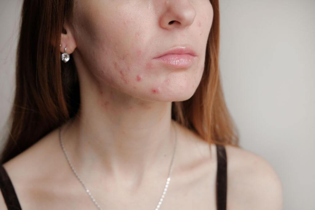 CBD Oil for Acne- How Does It Help?