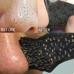 15pcs Blackhead Acne Removal Strong Stickers Nose Blackhead Pore Cleansing Cleaner