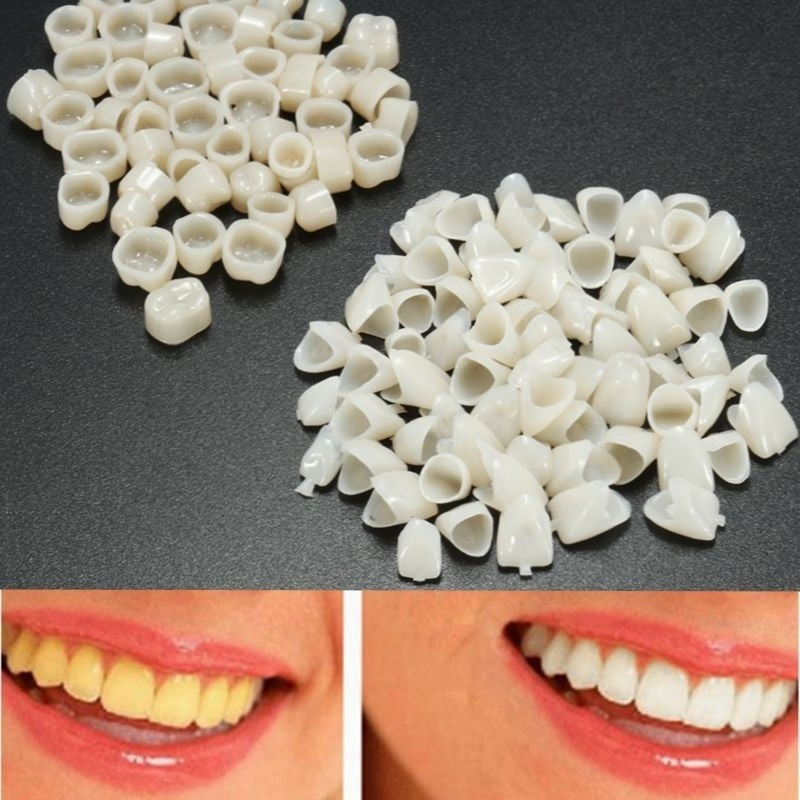 70x Anterior + 50x Molar Teeth Veneers Back Front Temporary Crown Material Dental Treatment Equipment Supplies Gum Protection Teeth Protector Material