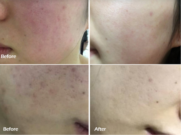 cica-centella-asiatica-before-after-skin-trouble-solution
