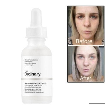 10ml The Ordinary Niacinamide 10% + Zinc 1% 30ml  Anti-Aging Skin Repair skincare whitening