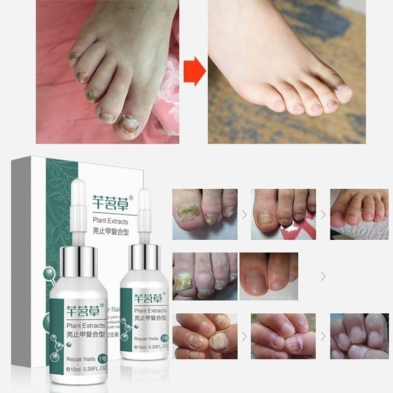 New Effective Fungus Stop, Fungus Treatment, Anti Fungus Nail Treatment, Effective Against Nail Fungus, Anti Fungal Nail Solution, Toenails&Fingernails Solution,Removes Yellow From Infected Finger & Toe Nails(10ml)