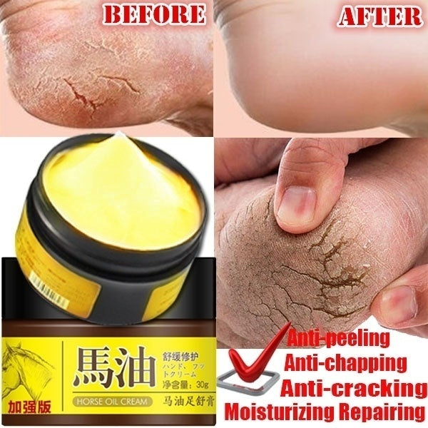 Hot Selling 30G Horse Oil Feet Cream Feet Blisters Peeling Scar Bad Feet Ointment