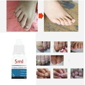 3/5/10ML Nail Treatment Liquid Grey Nail Clear Repair Enhanced Gray Nail Fungus Treatment Nail Protector