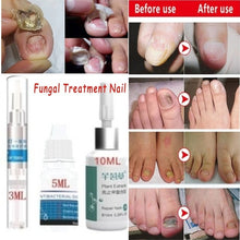 Load image into Gallery viewer, 3/5/10ML Nail Treatment Liquid Grey Nail Clear Repair Enhanced Gray Nail Fungus Treatment Nail Protector