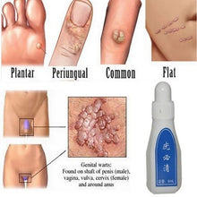 Load image into Gallery viewer, 6ml Skin Tag Remover Medical Tu Kill Remover Warts Treatment Foot Corn Removal Plantar Warts Pomada De Verruga Foot Care Medical Plaster Ointment