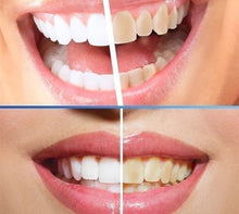 Load image into Gallery viewer, 10ML Magic Natural Teeth Whitening Powder Pearl Tooth Brushing Powder Physical Teeth Whitener Detoxifying Whitening Oralh Dental Oral Hygiene Buy 2 Get 1