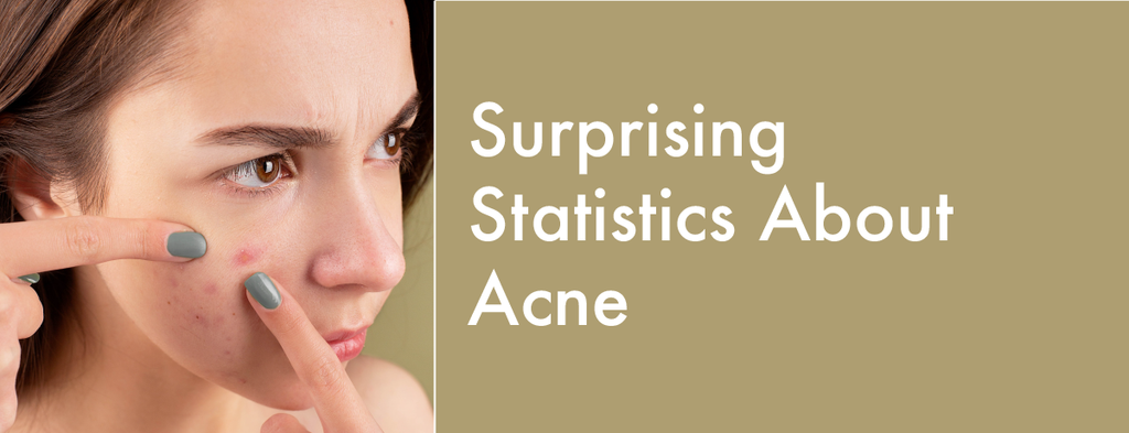 6 Surprising Statistics About Acne