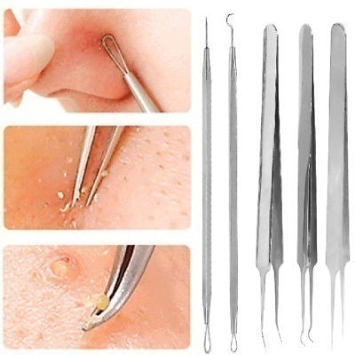 5pc Blackhead Whitehead Pimple Spot Comedone Acne Extractor Remover Popper Tool Kit